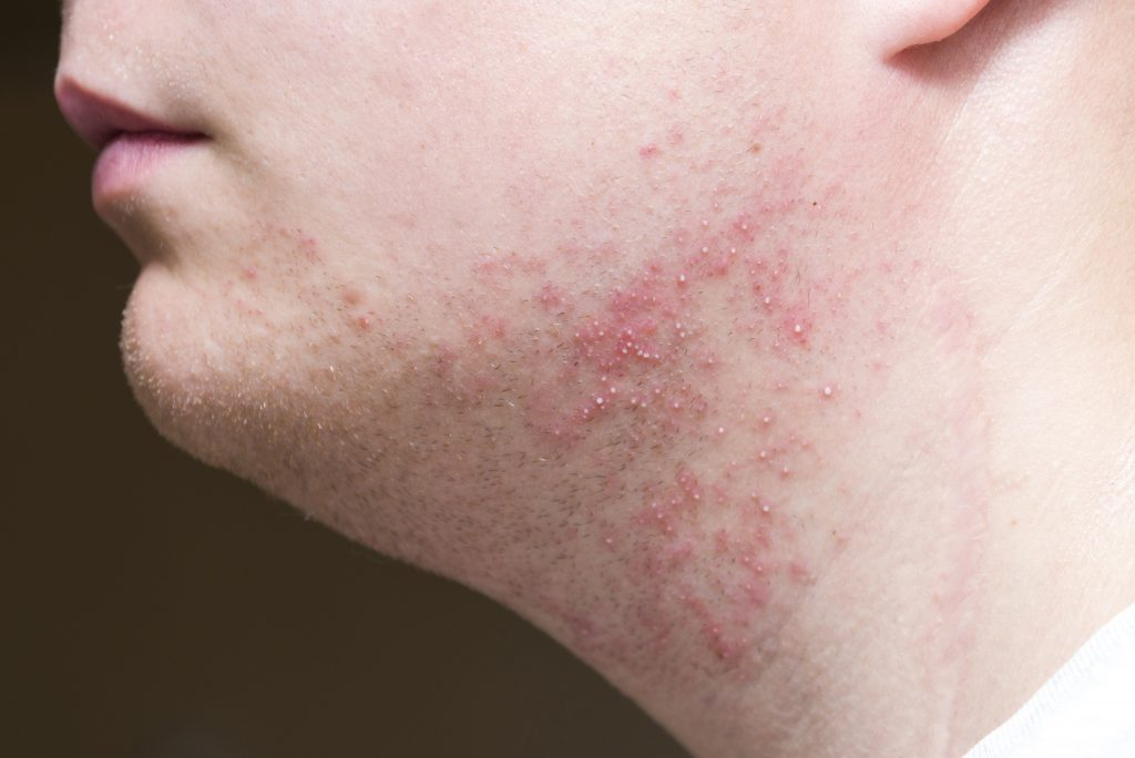 what causes razor bumps and razor burn