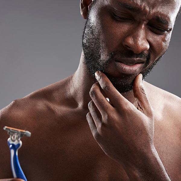 razor burn and razor bump prevention